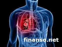 Латвийские ученые научились определять рак легких по дыханию человека